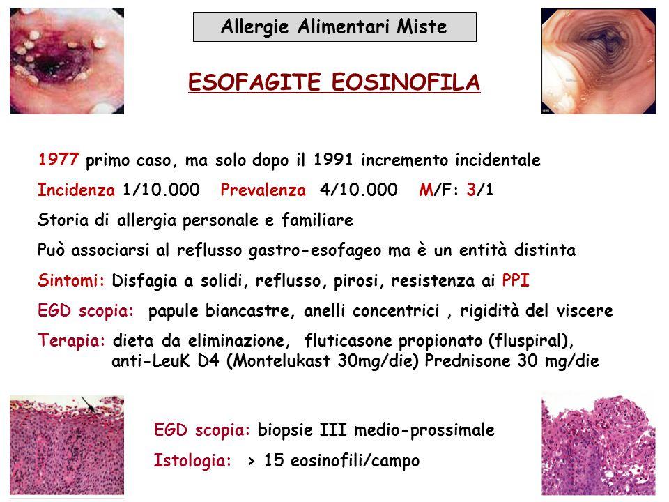 Allergie Alimentari Miste