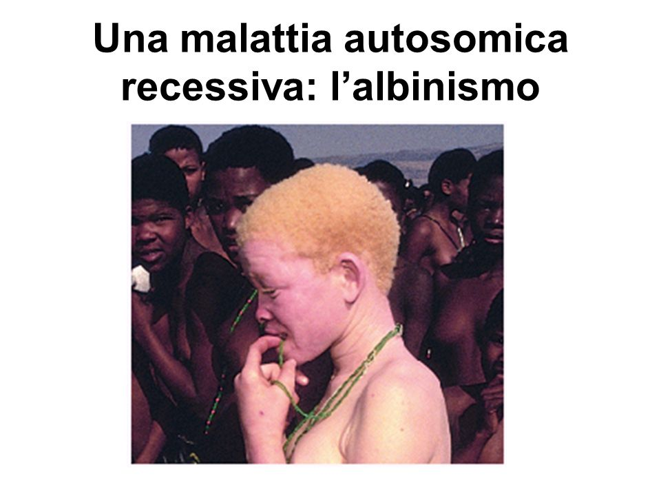 Una malattia autosomica recessiva: l'albinismo