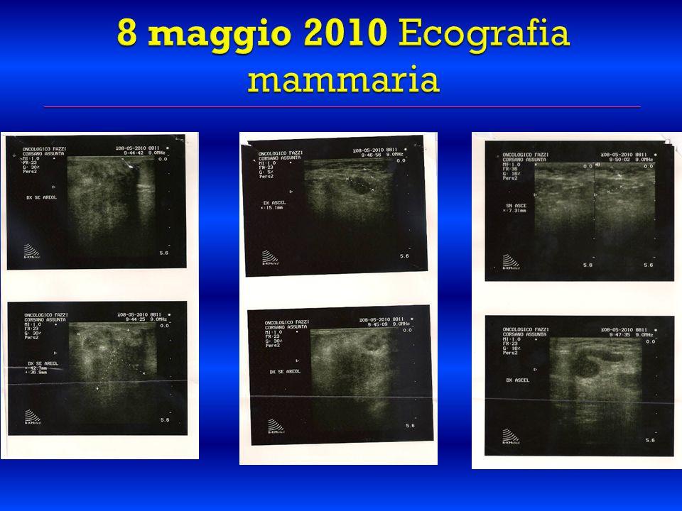 8 maggio 2010 Ecografia mammaria