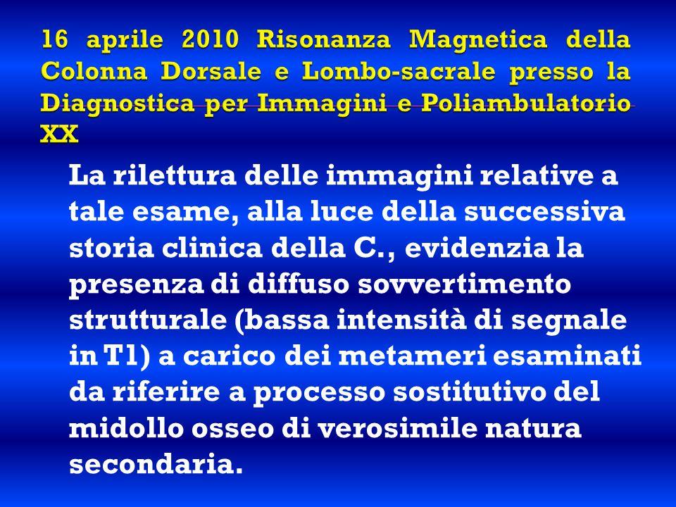 16 aprile 2010 Risonanza Magnetica della Colonna Dorsale e Lombo-sacrale presso la Diagnostica per Immagini e Poliambulatorio XX