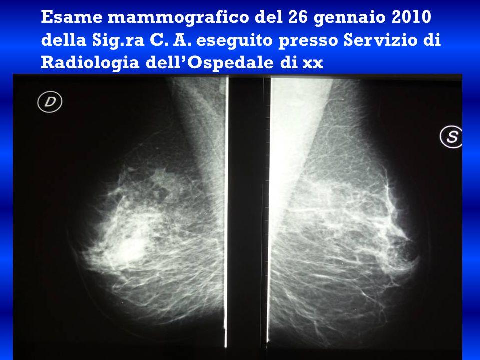 Esame mammografico del 26 gennaio 2010 della Sig. ra C. A