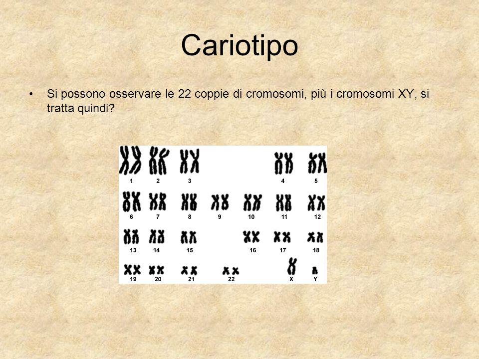Cariotipo Si possono osservare le 22 coppie di cromosomi, più i cromosomi XY, si tratta quindi