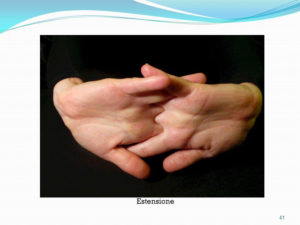 Estensione 41