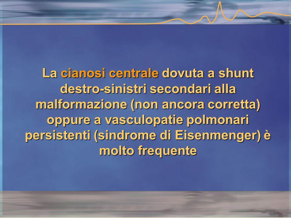 La cianosi centrale dovuta a shunt destro-sinistri secondari alla malformazione (non ancora corretta) oppure a vasculopatie polmonari persistenti (sindrome di Eisenmenger) è molto frequente