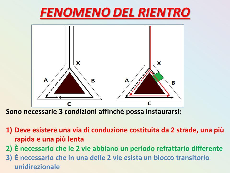 FENOMENO DEL RIENTRO Sono necessarie 3 condizioni affinchè possa instaurarsi: