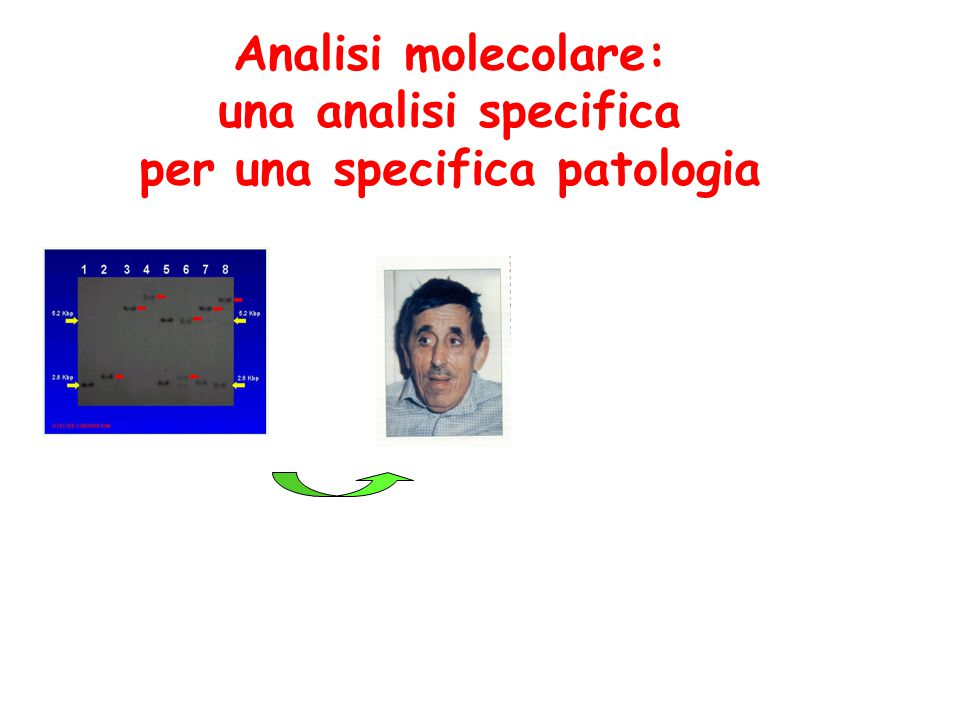 Analisi molecolare: una analisi specifica per una specifica patologia