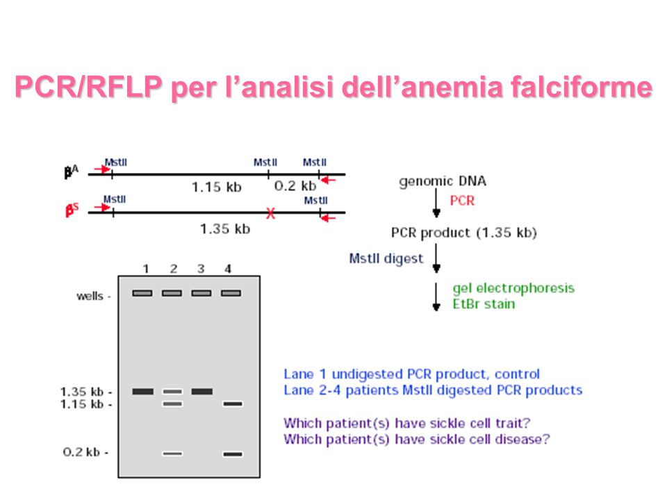 PCR/RFLP per l'analisi dell'anemia falciforme