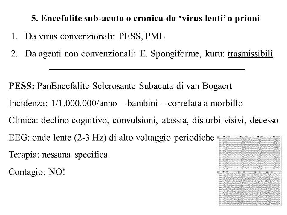 5. Encefalite sub-acuta o cronica da 'virus lenti' o prioni