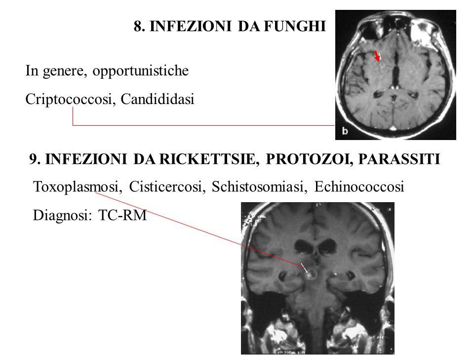 8. INFEZIONI DA FUNGHI In genere, opportunistiche. Criptococcosi, Candididasi. 9. INFEZIONI DA RICKETTSIE, PROTOZOI, PARASSITI.