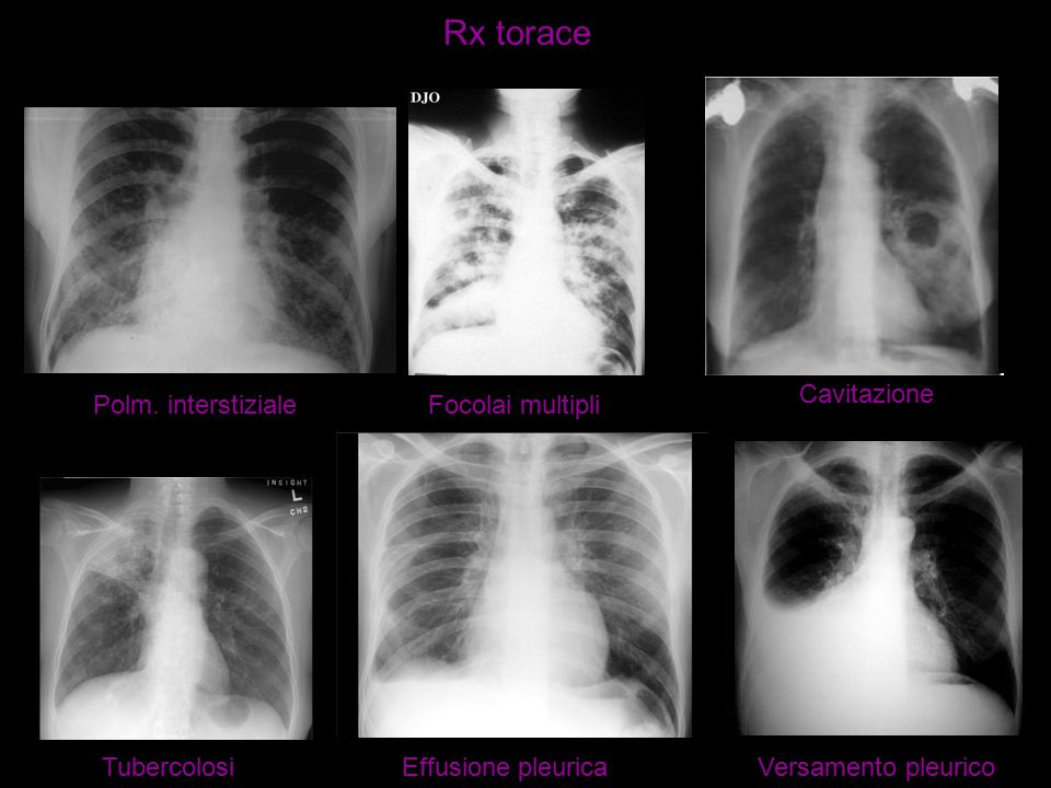 Rx torace Cavitazione Polm. interstiziale Focolai multipli Tubercolosi
