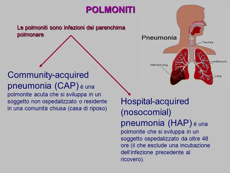 POLMONITI Le polmoniti sono infezioni del parenchima polmonare.