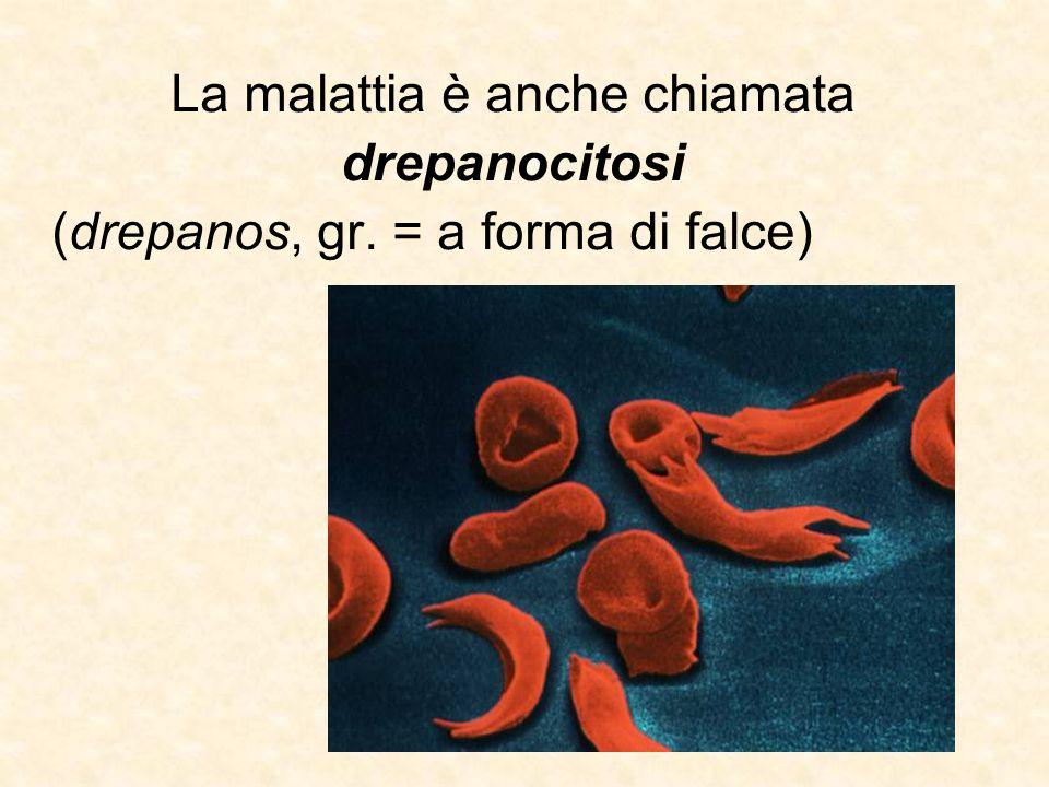 La malattia è anche chiamata drepanocitosi