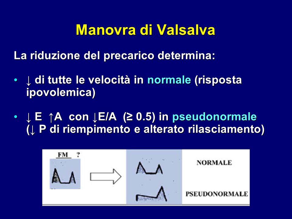Manovra di Valsalva La riduzione del precarico determina: