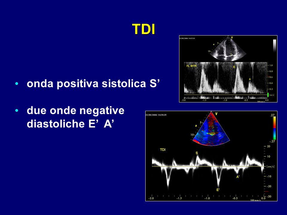 TDI onda positiva sistolica S' due onde negative diastoliche E' A'