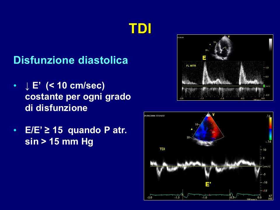 TDI Disfunzione diastolica