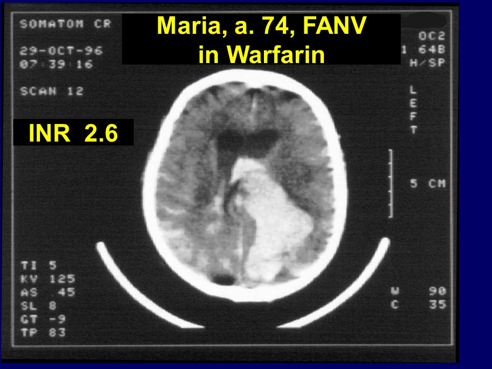 Maria, a. 74, FANV in Warfarin INR 2.6