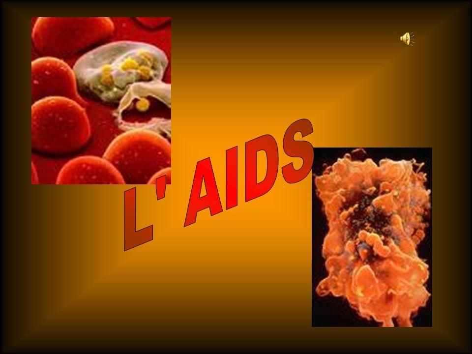 L AIDS