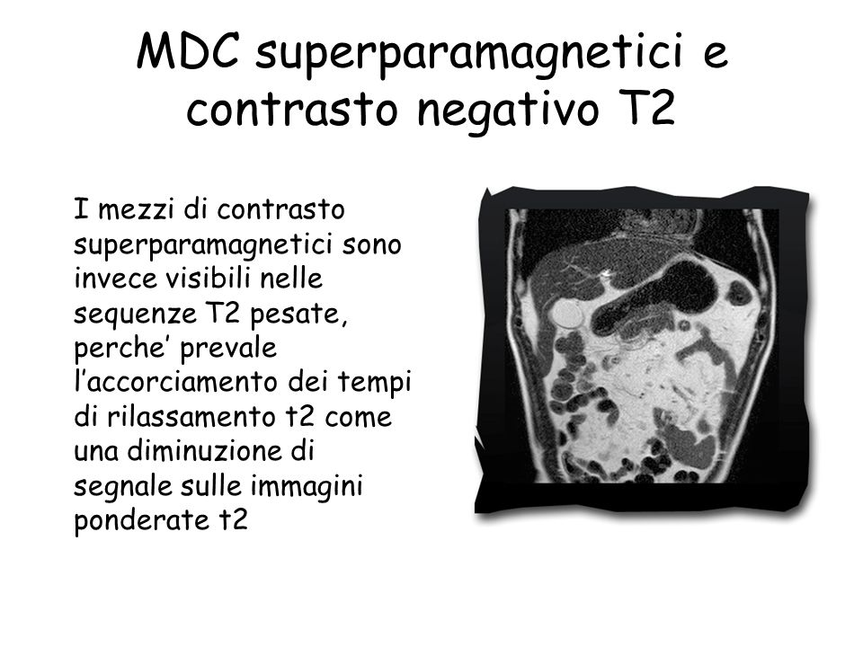 MDC superparamagnetici e contrasto negativo T2