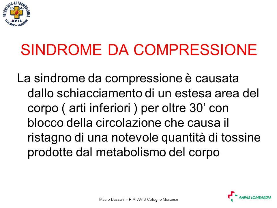 SINDROME DA COMPRESSIONE