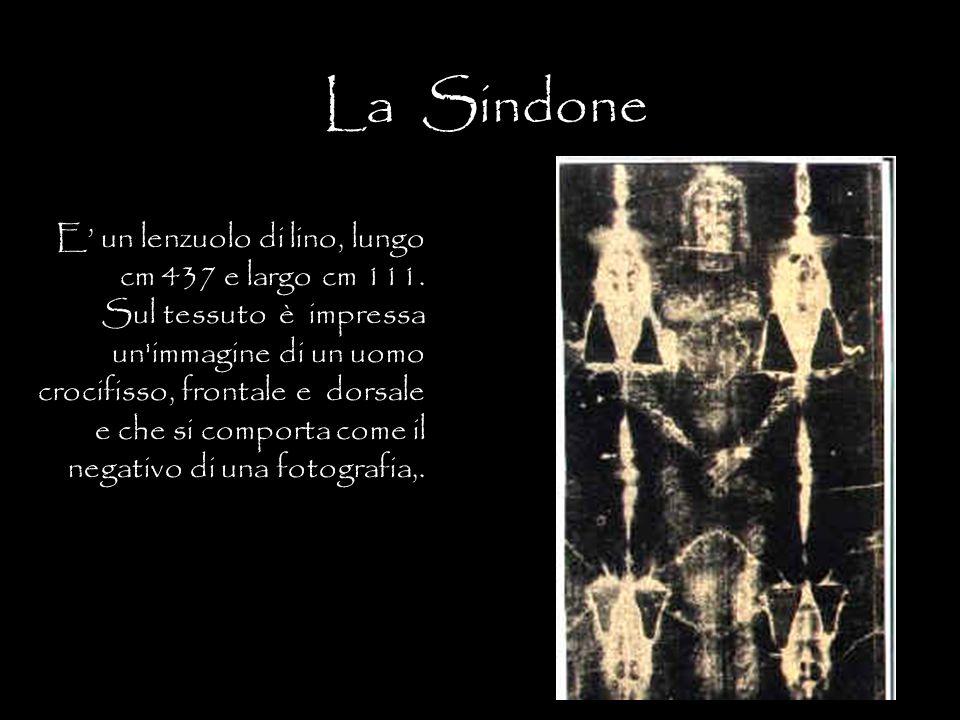 La Sindone