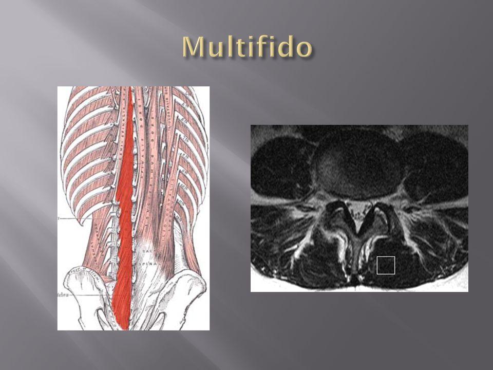 Multifido