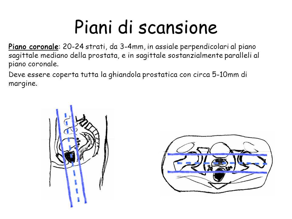 Prostata protocollo d esame rm ppt video online scaricare for Piani di coperta autoportanti