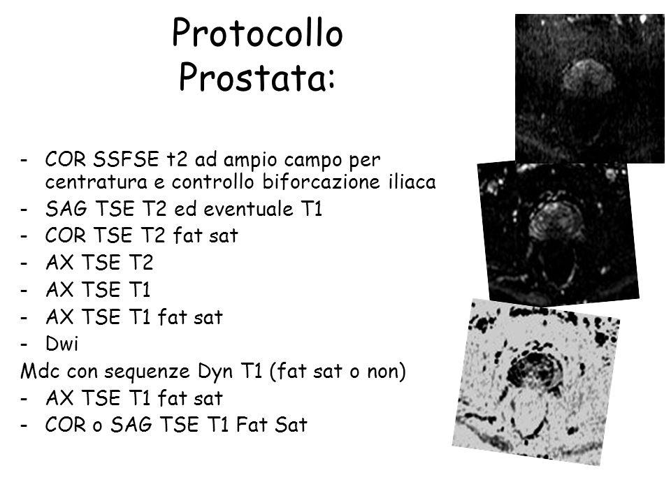 Protocollo Prostata: COR SSFSE t2 ad ampio campo per centratura e controllo biforcazione iliaca. SAG TSE T2 ed eventuale T1.