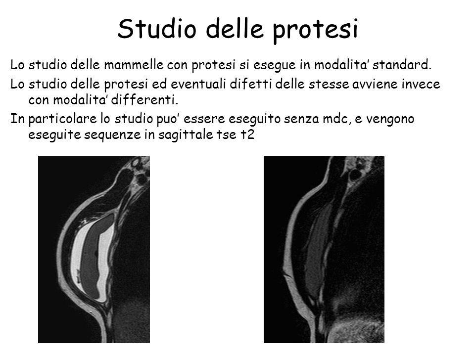 Studio delle protesi Lo studio delle mammelle con protesi si esegue in modalita' standard.