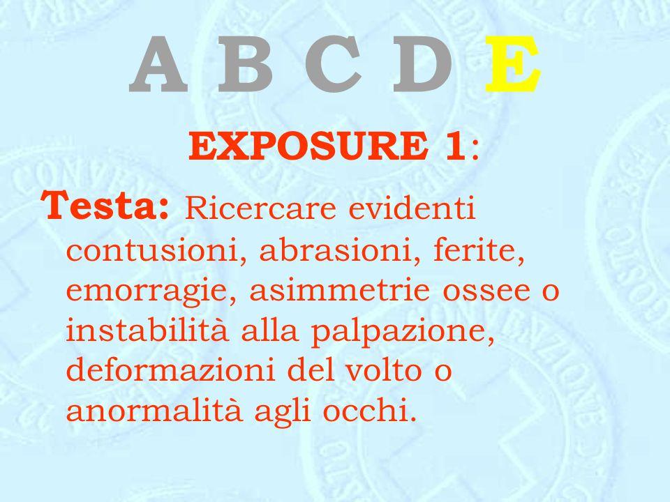 A B C D E EXPOSURE 1: