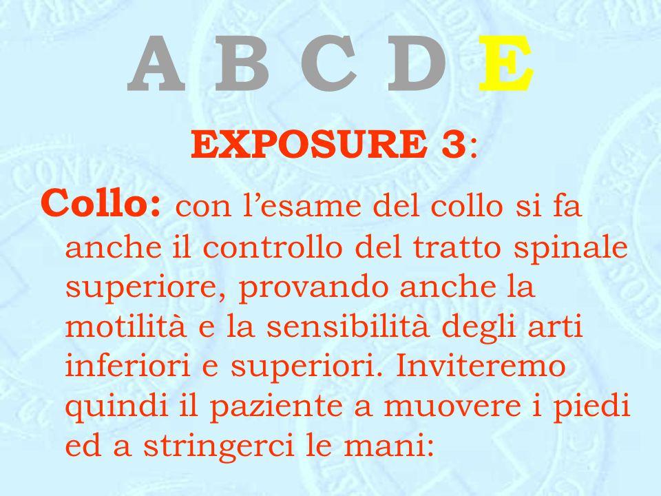 A B C D E EXPOSURE 3: