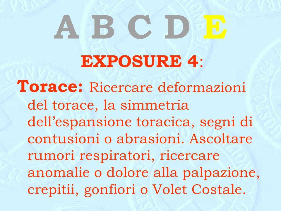 A B C D E EXPOSURE 4:
