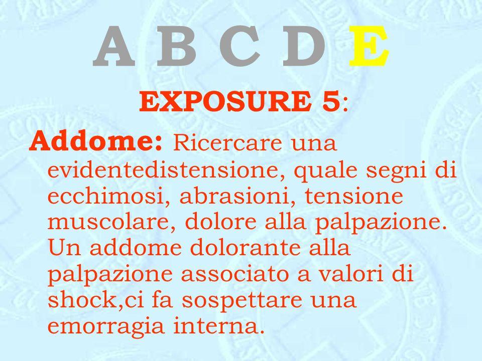 A B C D E EXPOSURE 5: