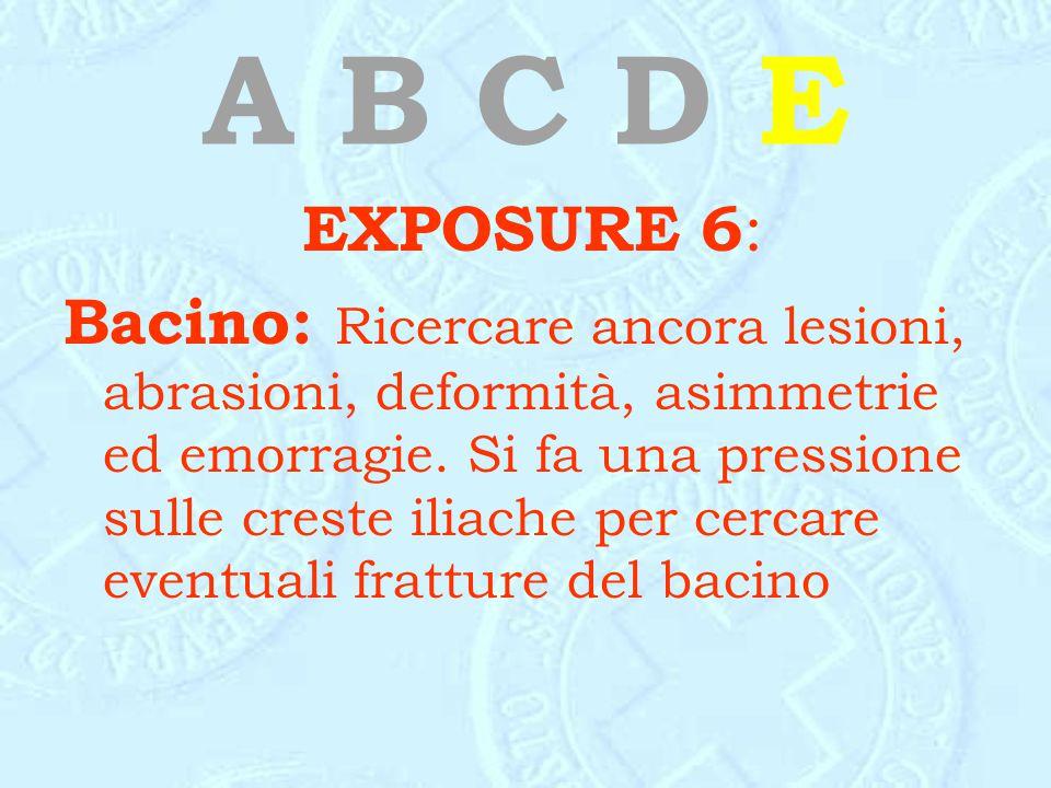 A B C D E EXPOSURE 6: