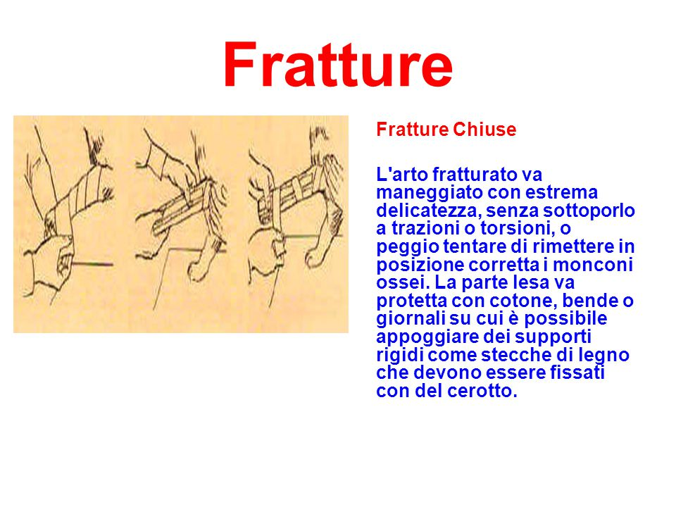 Fratture Fratture Chiuse