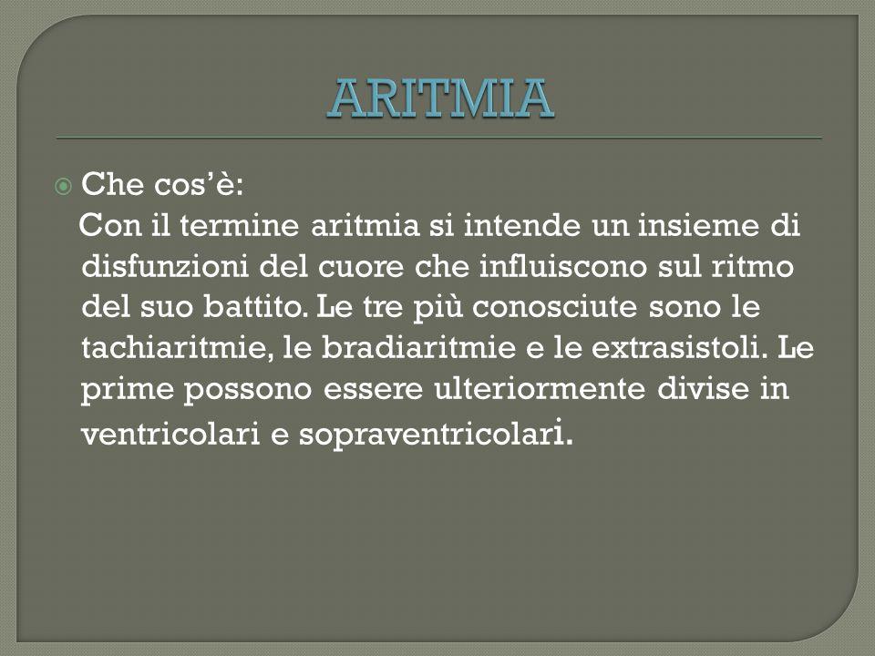 ARITMIA Che cos'è: