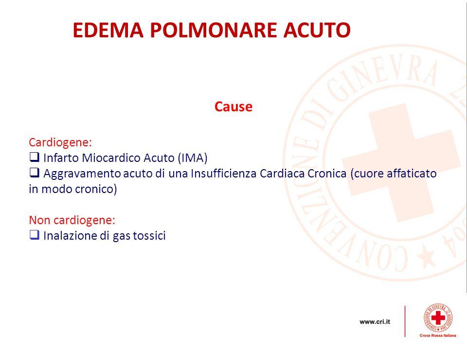 EDEMA POLMONARE ACUTO Cause Cardiogene: Infarto Miocardico Acuto (IMA)