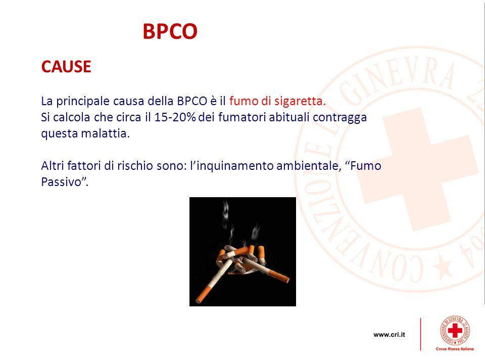 BPCO CAUSE La principale causa della BPCO è il fumo di sigaretta.