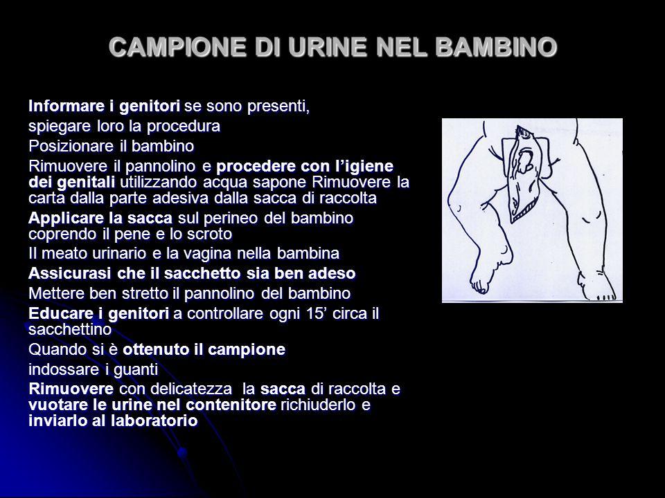 CAMPIONE DI URINE NEL BAMBINO