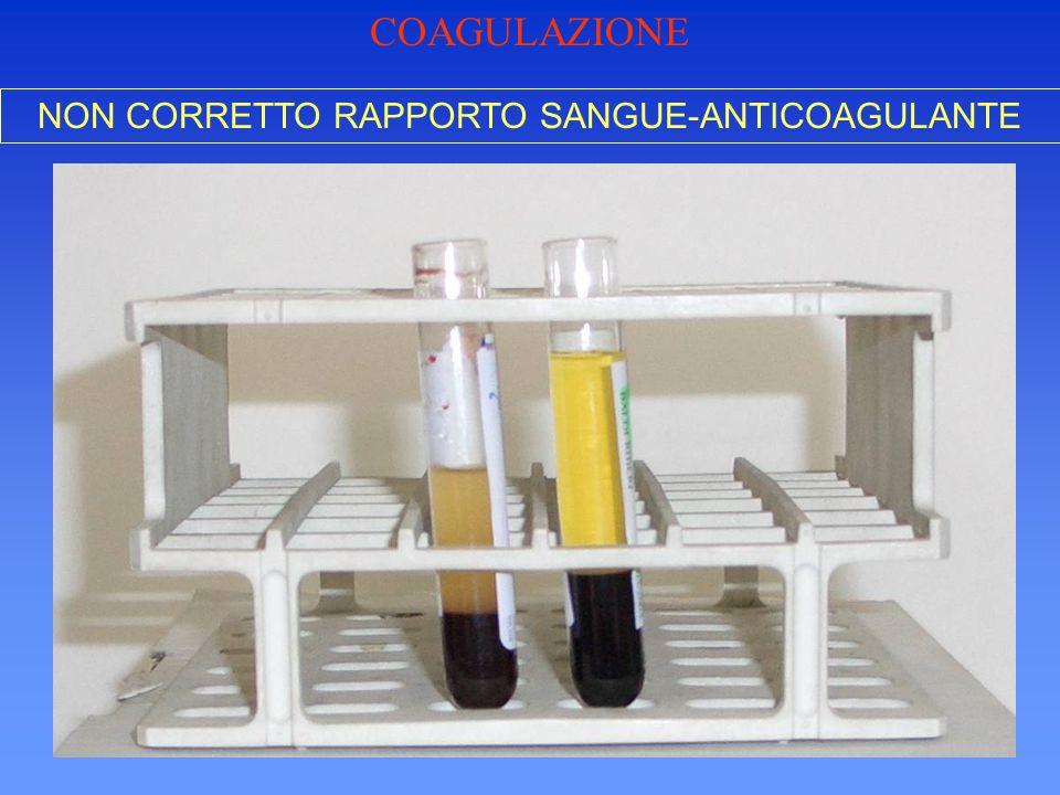 NON CORRETTO RAPPORTO SANGUE-ANTICOAGULANTE