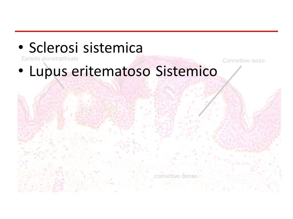 Sclerosi sistemica Lupus eritematoso Sistemico