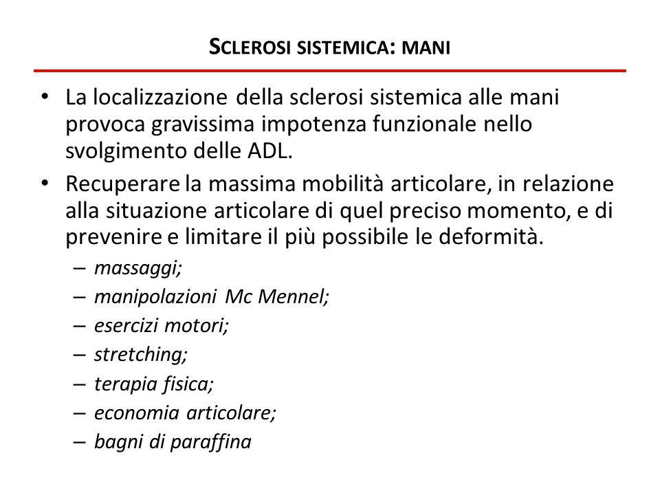 Sclerosi sistemica: mani