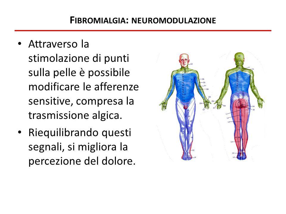Fibromialgia: neuromodulazione