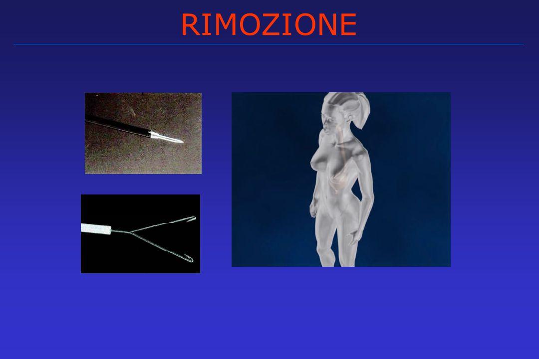 RIMOZIONE