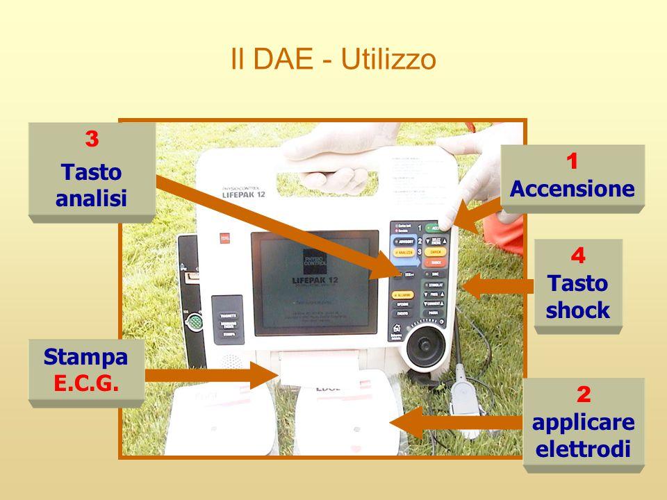 Il DAE - Utilizzo 3 Tasto analisi 1 Accensione 4 Tasto shock