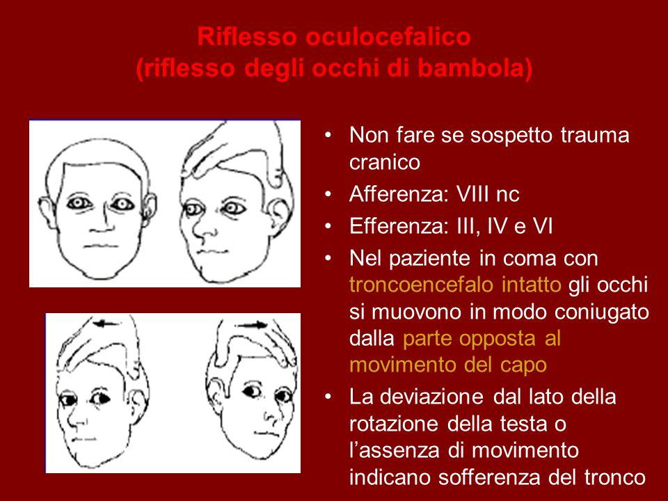 Riflesso oculocefalico (riflesso degli occhi di bambola)