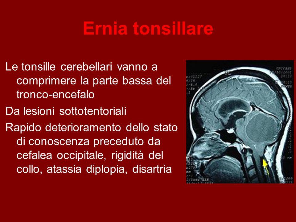 Ernia tonsillare Le tonsille cerebellari vanno a comprimere la parte bassa del tronco-encefalo. Da lesioni sottotentoriali.