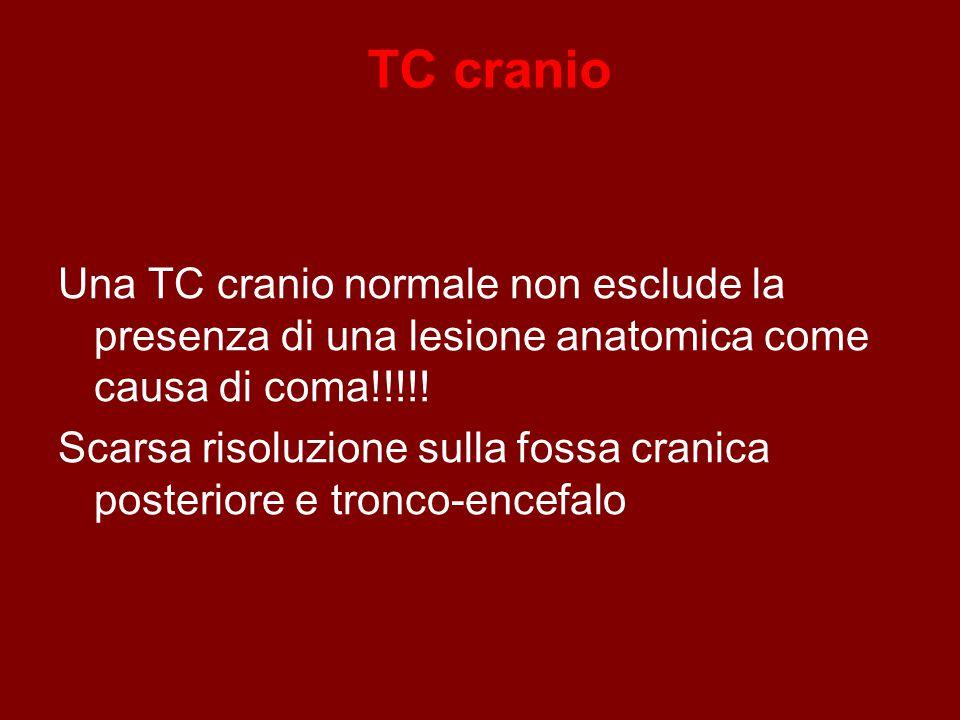 TC cranio