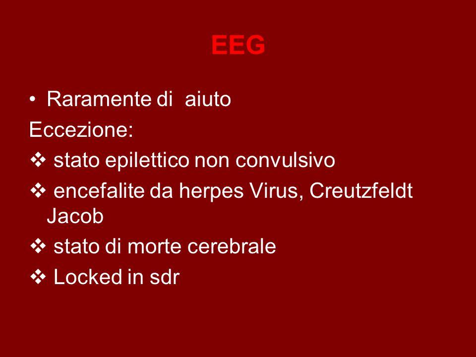 EEG Raramente di aiuto Eccezione: stato epilettico non convulsivo