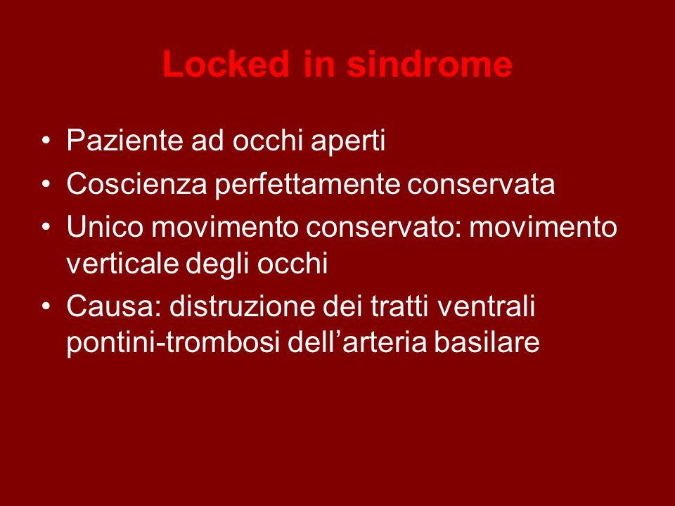 Locked in sindrome Paziente ad occhi aperti