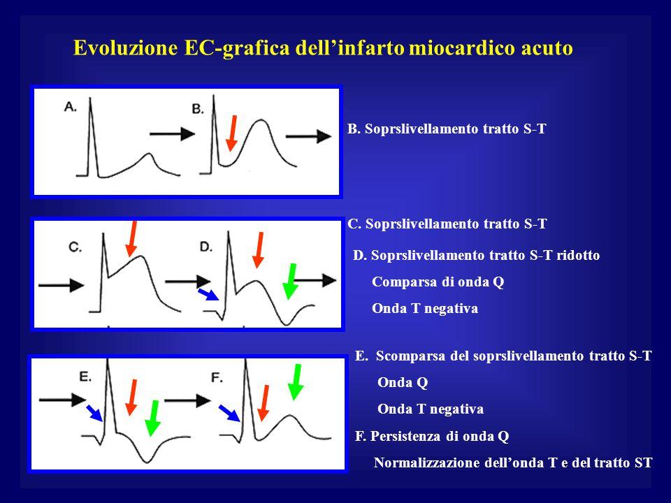 Evoluzione EC-grafica dell'infarto miocardico acuto